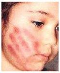 دختر ۲۰ ماهه قربانی کودکآزاریشد